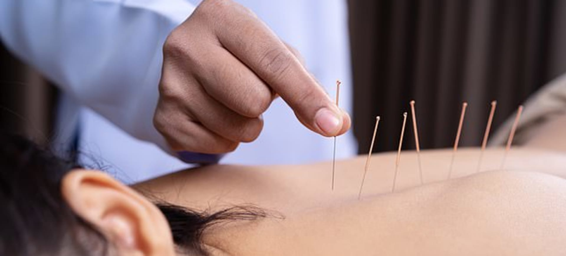 Acupuncture could be used to treat alcohol dependency by activating brain pathways that are reduced in alcoholics, scientists claim